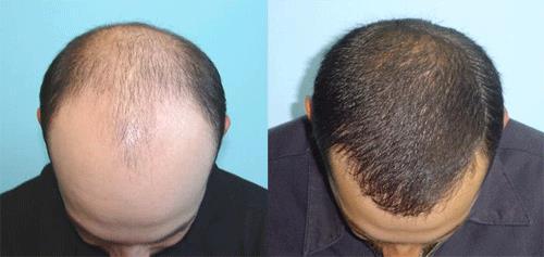 ریزش مو روی بالش